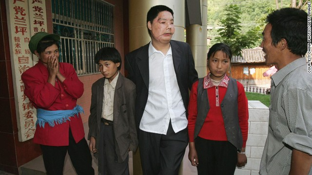 Li Guoxing, China's first partial face transplant patient, stands with his family in Lanping County of Yunnan Province in 2006. He died in 2008.