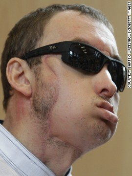 "A 33-year-old Polish man identified only as ""Grzegorz"" received the country's first face transplant in May 2013, after being disfigured by a machine at a stonemason's workshop. Polish doctors described it as the world's first life-saving face transplant."