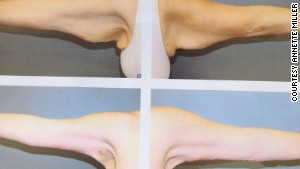 A surgeon removed the excess skin left behind on Miller\'s arms following her weight loss.