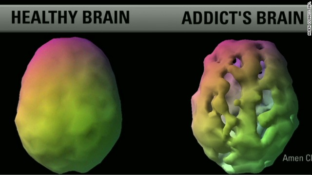 Brain Scan of Depressed Brain Brain Scans Reveal Link