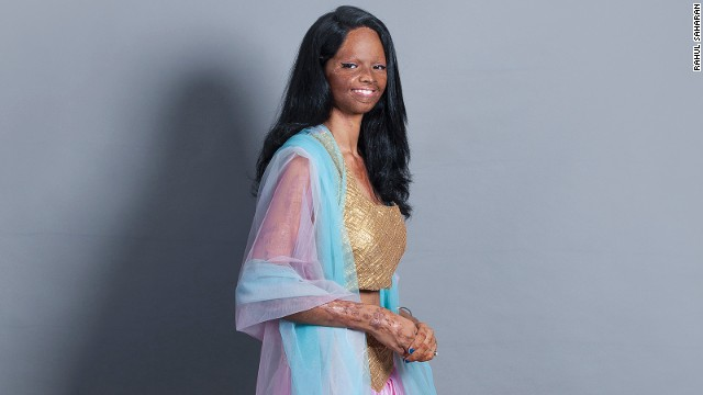 Laxmi wants other acid attack survivors to come out of isolation.