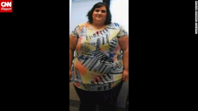 At her heaviest in 2011, Shannon Britton weighed 486 pounds. This photo was taken 10 days before her gastric bypass surgery on November 23.