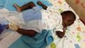 Eight-limbed boy undergoes surgery