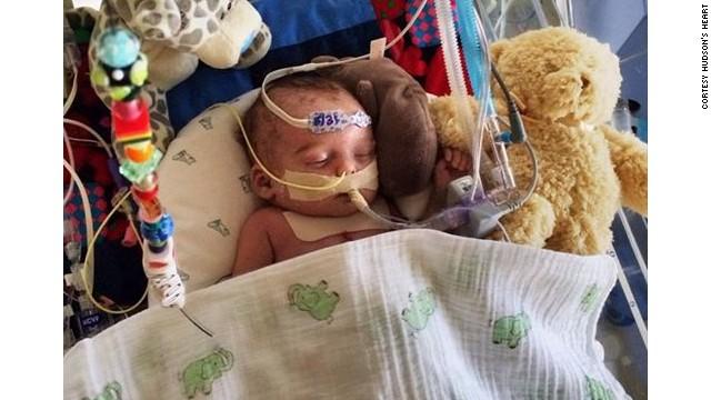 """La imagen de un bebé enfermo, """"muy gráfica"""" para Facebook"""