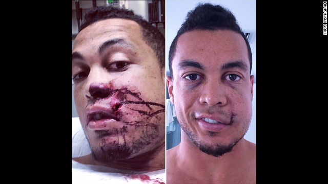 "Giancarlo Stanton, an All-Star baseball player with the Miami Marlins, <a href='http://instagram.com/p/tA6J_NQ6lg/' target='_blank'>posted photos of himself</a> after a pitch hit him in the face Thursday, September 11, in Milwaukee. ""Making huge progress!!"" he wrote on Instagram. ""Want to thank everyone who has played a part in my recovery process. Your kind messages, thoughts &amp; prayers have meant the world to me."""