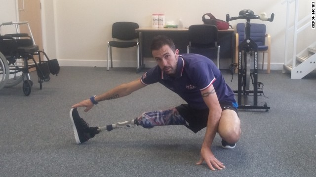 Para-triathlete Andy Lewis uses Ottobock's S380 leg, the first above-the-knee prosthetic specialized for running.