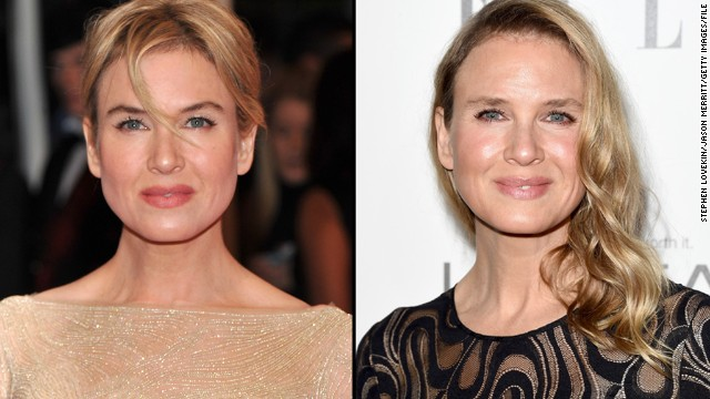 "When Renee Zellweger arrived at the 2014 Elle Women in Hollywood awards October 20, some people said they couldn't recognize her. Perhaps that's because the ""Bridget Jones"" star has spent less time in the public eye recently; her last film credit was in 2010. That should change soon, however: Zellweger's next film, ""The Whole Truth,"" is due in 2015."