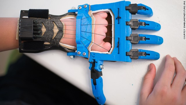 The Talon hand is a <a href='http://blog.solidoodle.com/2014/03/father-and-son-make-prosthetic-device-with-their-solidoodle/' target='_blank'>popular model designed</a> by a high school French teacher, Peter Binkley, for his son, Peregrine Hawthorne. Both of them are major design and testing contributors to the e-NABLE community.