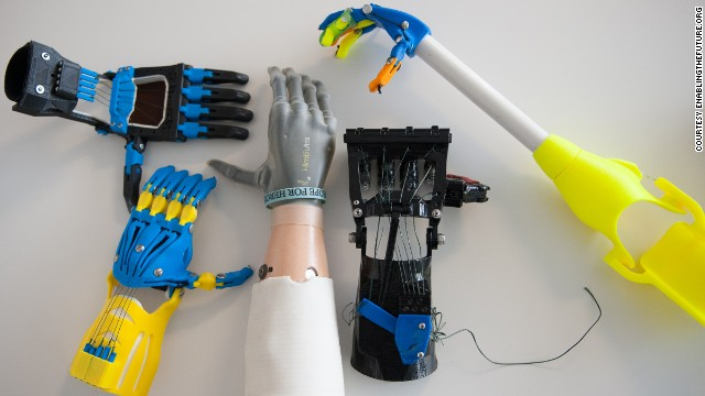 The gray hand in the middle, an i-limb ultra, is a top-of-the-line electronic prosthetic that can <a href='http://www.cnn.com/2013/02/01/tech/bionic-hand-ilimb-prosthetic/'>cost $100,000</a>. Surrounding it are body-powered devices that were developed and built at low cost by e-NABLE, a global, Web-based social network that connects people who need hands with people who are interested in building them.