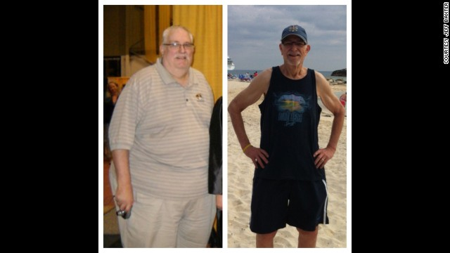 Jeff Baxter, a language arts teacher from Kansas City, Kansas, lost 270 pounds after undergoing gastric sleeve surgery.