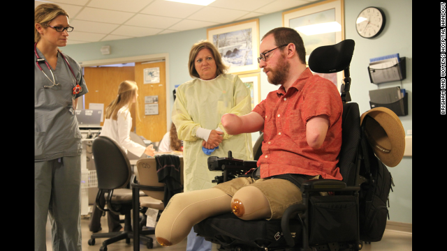 Grateful Boston man shows off his double arm transplant
