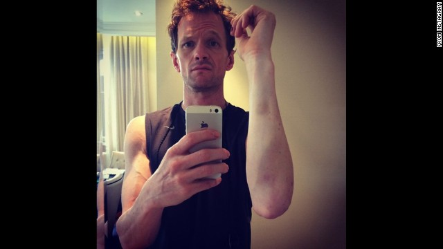 """Almost broke off my arm during a show last week,"" actor Neil Patrick Harris said in <a href='http://instagram.com/p/qfCCDFyTjg/' target='_blank'>this selfie he posted to Instagram</a> on Tuesday, July 15. ""Gots the bruises to prove it. Hedwig's outta control. #battlescars."" Harris was referring to the Broadway show ""Hedwig and the Angry Itch."""