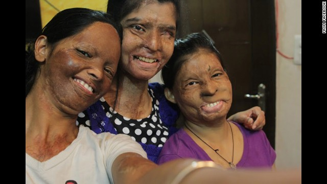 "Three acid attack victims, Laxmi, Rupa and Ritu, take a selfie Friday, June 20, for the <a href='https://www.facebook.com/photo.php?fbid=166427150199113&set=a' target='_blank'>Stop Acid Attacks campaign:</a> ""Together we can eliminate this social evil. ... Help us succeed in our fight to end #AcidViolence in India."""