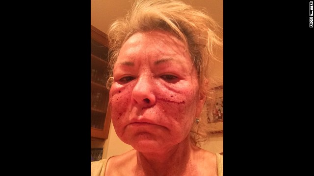 """Got a chemical peel to look more sexier,"" <a href='https://twitter.com/therealroseanne/status/537510206062612480' target='_blank'>tweeted</a> comedian Roseanne Barr on Tuesday, November 25. ""Joked about tussling Cosby."""