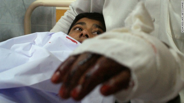 An injured student lies in bed at a Peshawar hospital after the attack.
