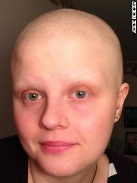Un año sin cáncer en 9 fotos