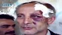Torture by Syrian regime?