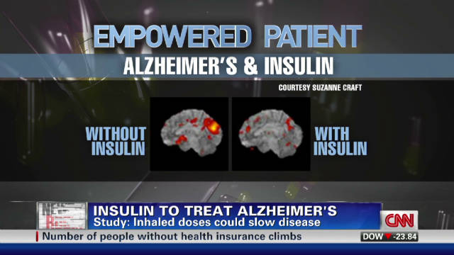 Insulin may help treat Alzheimer's