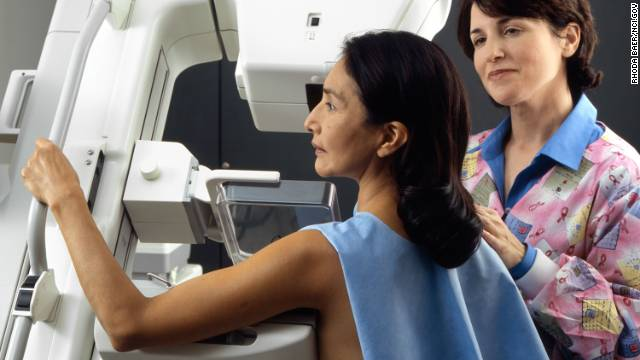 A women gets a mammogram done, a screening for breast cancer.