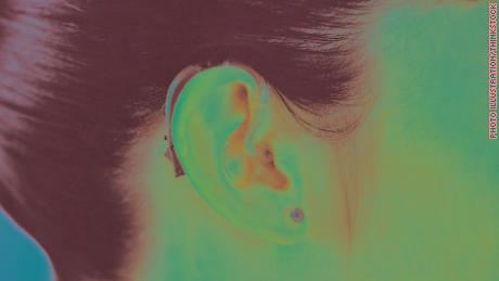 Hearing loss an 'invisible,' and widely uninsured, problem