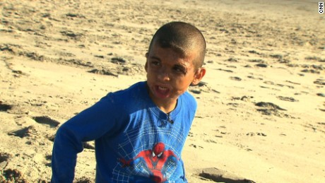 Youssif, now 9, was doused in gas and burned by masked men in Iraq in 2007.