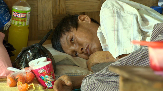 Myanmar's health crisis