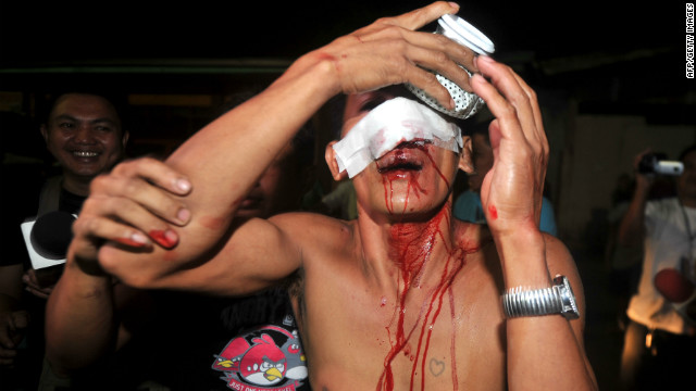 Authorities in the Philippines said 454 people were hurt by firecrackers and 18 by stray bullets during New Year celebrations.