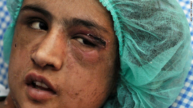 Afghan girl found tortured
