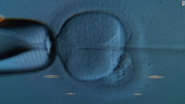 A British medical study discourages transferring three or more embryos.