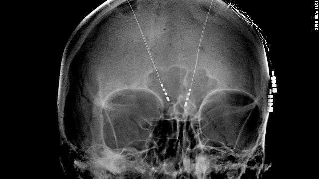 Inside the 'battery-powered' brain