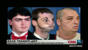 Man receives extensive face transplant