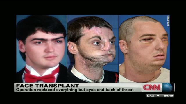Man receives extensive face transplant