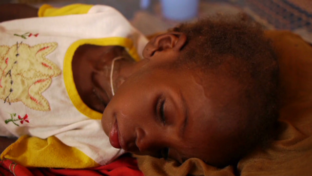 Drought in Chad, millions in danger