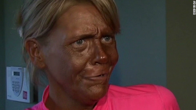 New Jersey mom's unbelievable tan