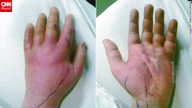 Percy von Lipinski's left hand looked like this as he recovered; the pen marks show the spread of infection.
