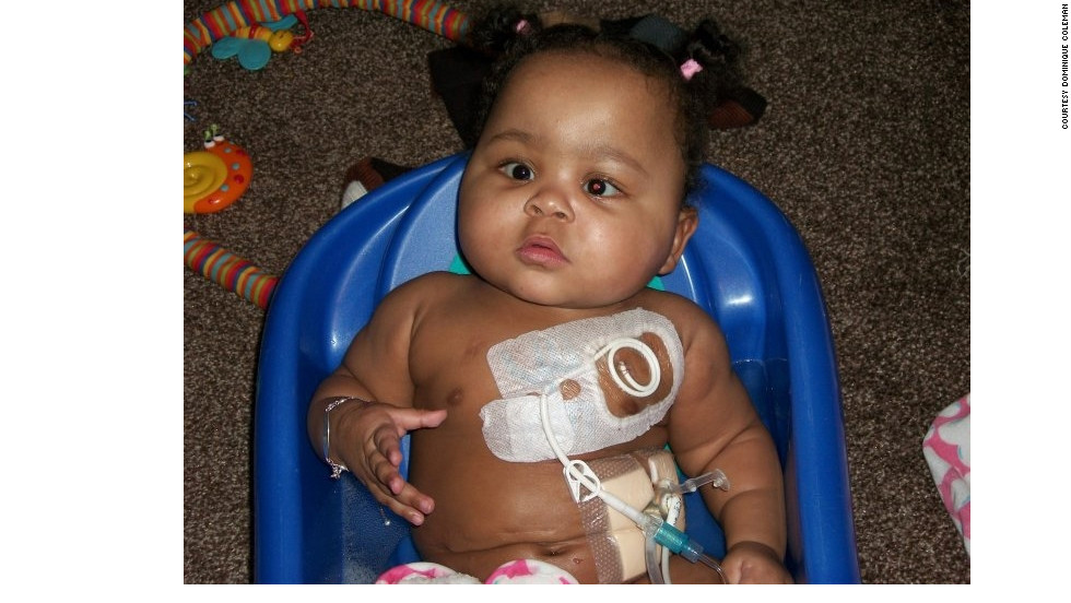 Alicia Coleman had a feeding tube in her stomach and a chest tube in her vein. A caregiver at a medical daycare mistakenly used the wrong tube and pumped medicine into Coleman's chest instead of her stomach. Coleman died when the medicine stopped her tiny heart.