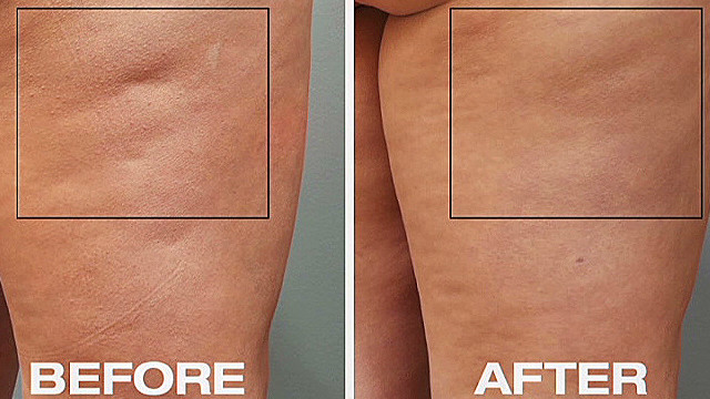 New cellulite treatment _00003902