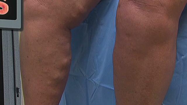 Varicose veins _00004023