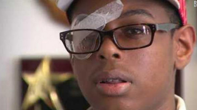 Kardin Ulysse, 14, is suing the New York school system, saying it failed to supervise the youths who beat him.