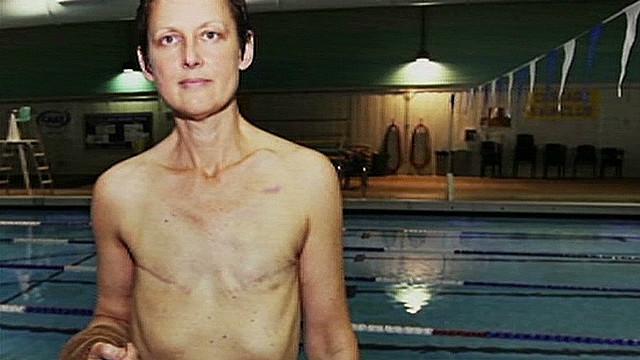 Topless breast cancer survivor_00012417