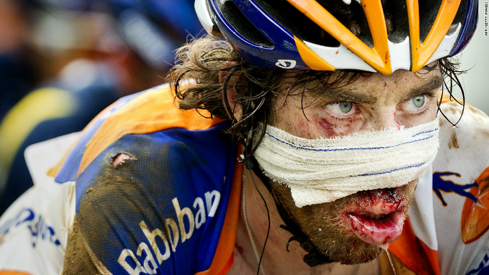Dutchman Laurens ten Dam shows the typical courage of a Tour de France competitor. The Rabobank rider crashed on a mountain stage last year and carried on despite facial injuries.