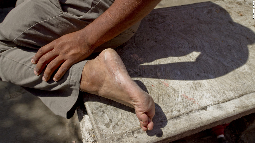 After long treks in harsh conditions, many immigrants arrive with wounds or infections on their feet.