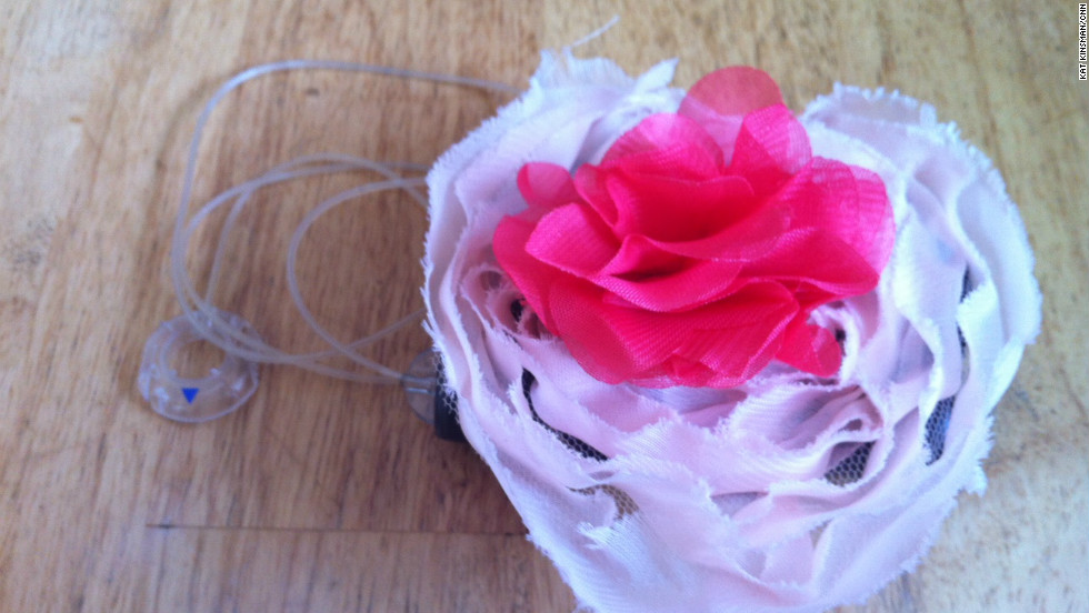 A Hanky Pancreas floral cover turns an insulin pump into a pretty accessory.