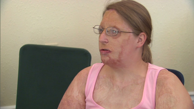 Burn victim: 'They call me burnt toast'
