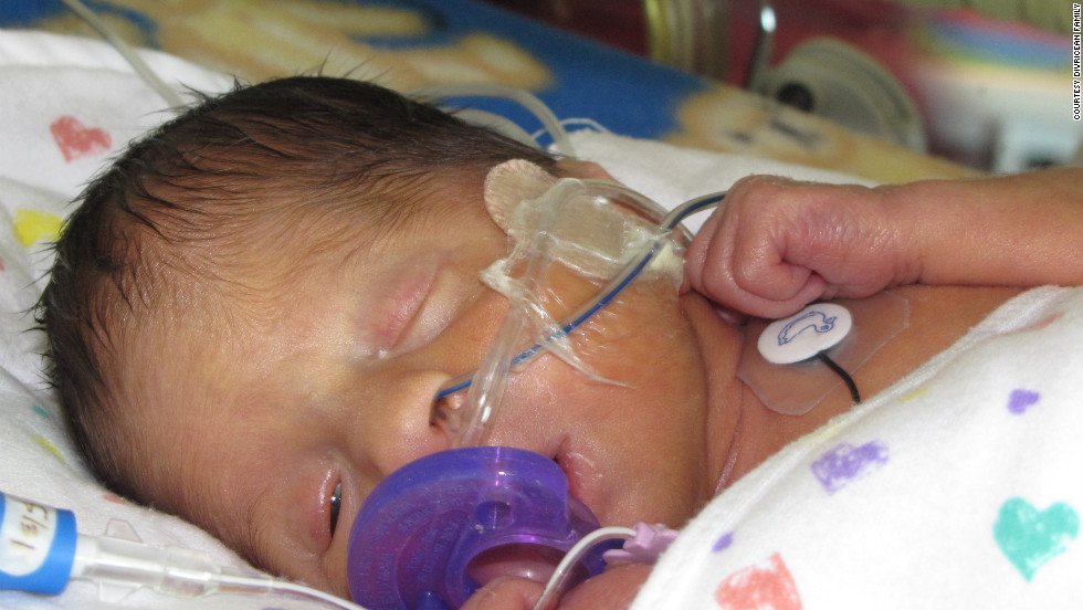 Shortly after his birth, Patrick had a section of his intestines temporarily diverted into a colostomy bag.