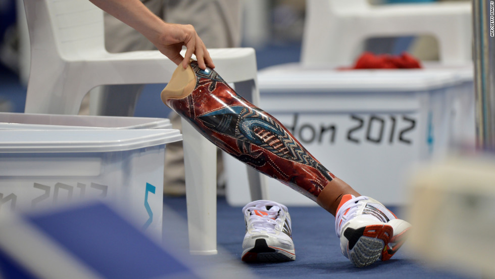 A volunteer moves the prosthetic leg of Sven Decaesstecker of Belgium during the men's SM10 200-meter individual medley swimming heat.