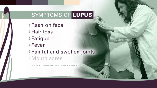 How one woman bravely manages lupus