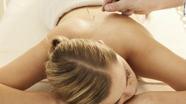 "Acupuncture relieves pain, studies show, but some believe it's partly a ""placebo effect."""