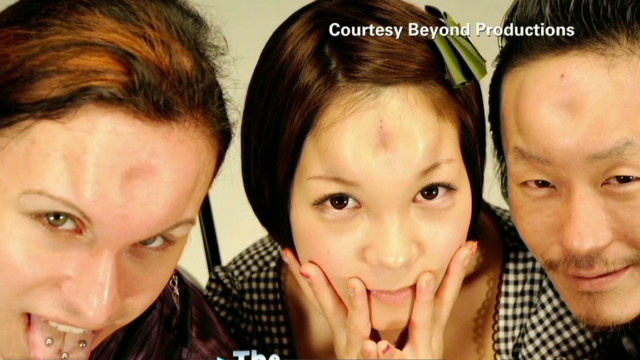 RidicuList: Bagel-shaped foreheads