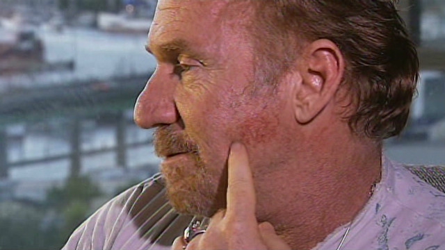 Danny Bonaduce:  Fan bite 'so painful'